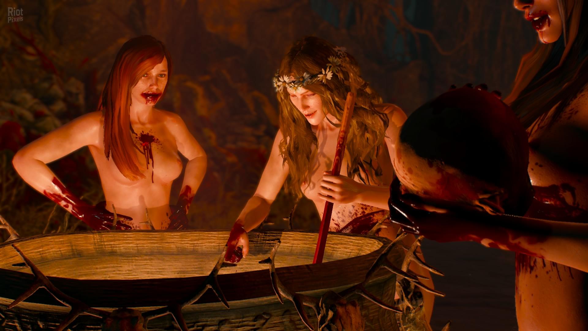Nude girl on torture xxx photos
